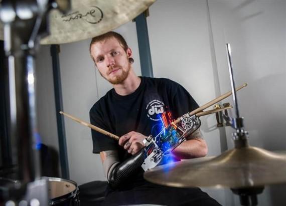 protesi robotica batterista 2014